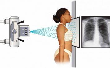 nguyên lý hoạt động của máy chụp x quang