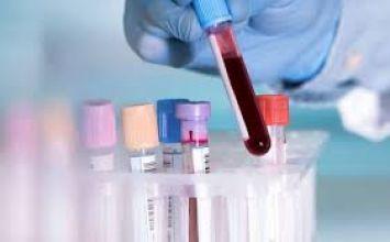 quy trình lấy máu và các lưu ý