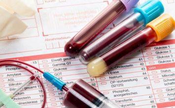 sinh hóa máu