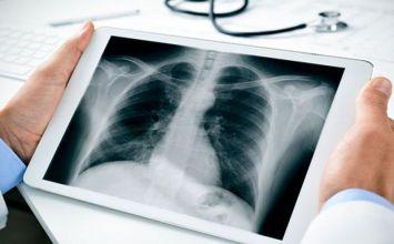 chụp X-quang phổi có chẩn đoán được ung thư phổi