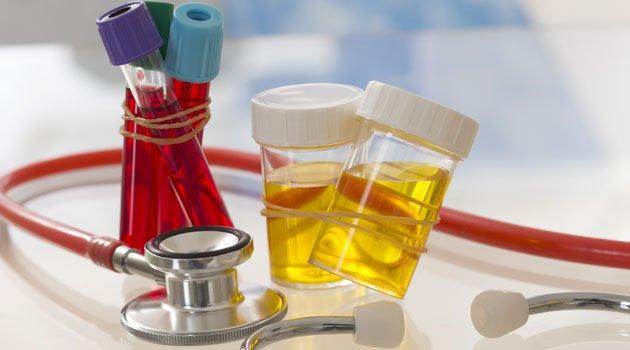 xét nghiệm cặn lắng nước tiểu