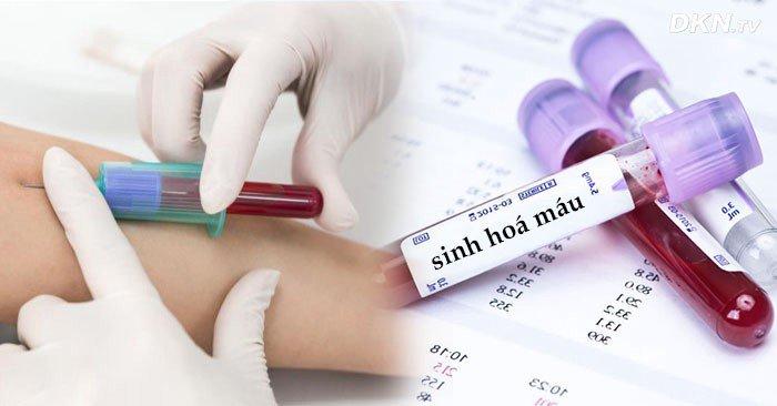 xét nghiệm sinh hoá máu