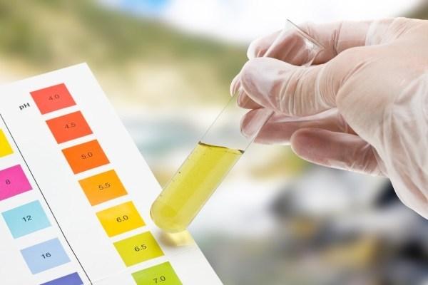 phương pháp xét nghiệm nước tiểu