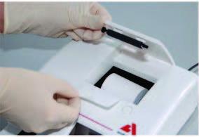 sử dụng máy xét nghiệm nước tiểu