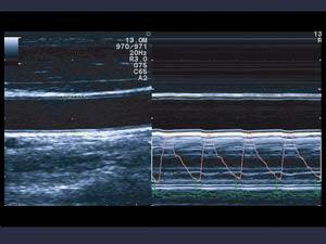 công nghệ tim mạch máy siêu âm hitachi