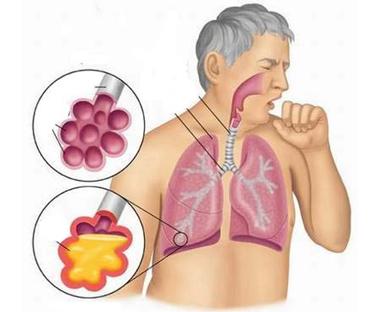 nhiễm khuẩn đường hô hấp