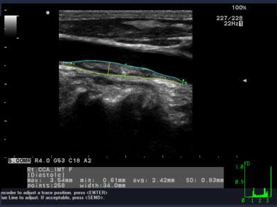 công nghệ siêu âm tim mạch