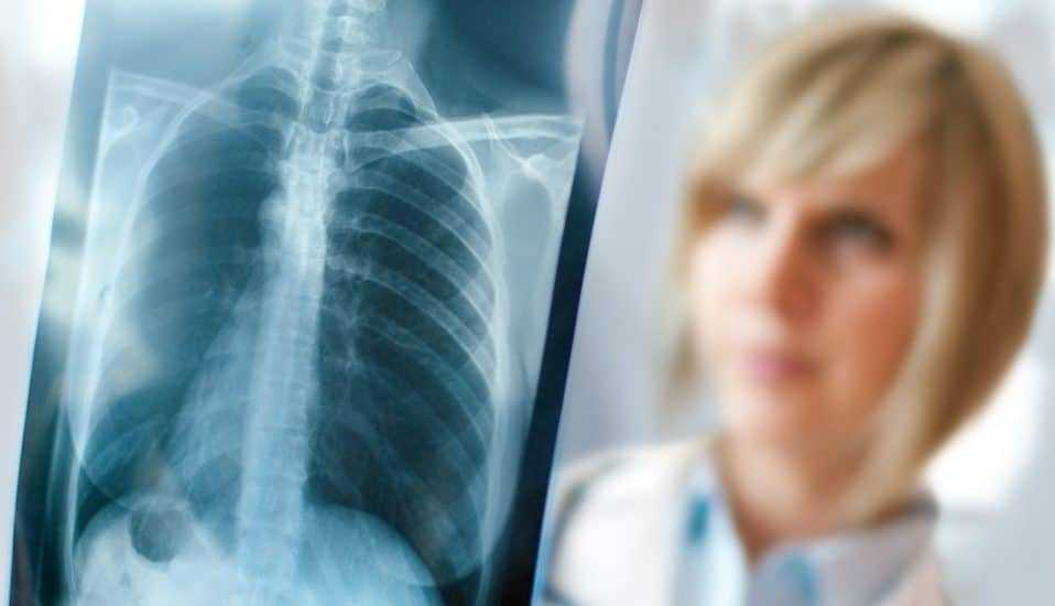 thâm nhiễm phổi