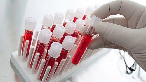 xét nghiệm huyết học