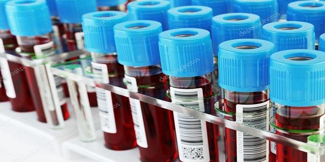 xét nghiệm tổng phân tích tế bào máu